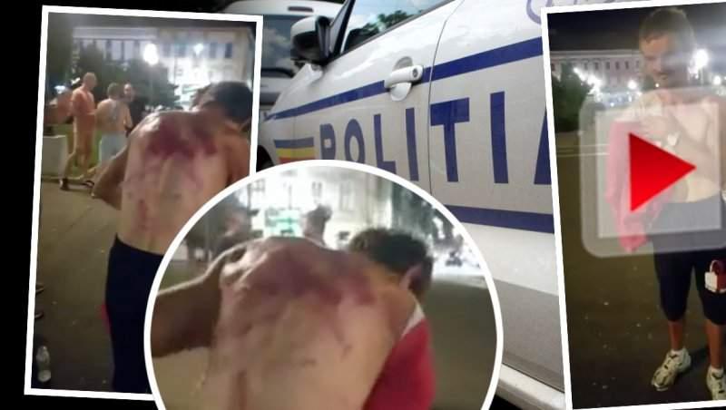 VIDEO / Tânăr fără o mână, mutilat în bătaie, de polițiști / A amenințat că își va face singur dreptate