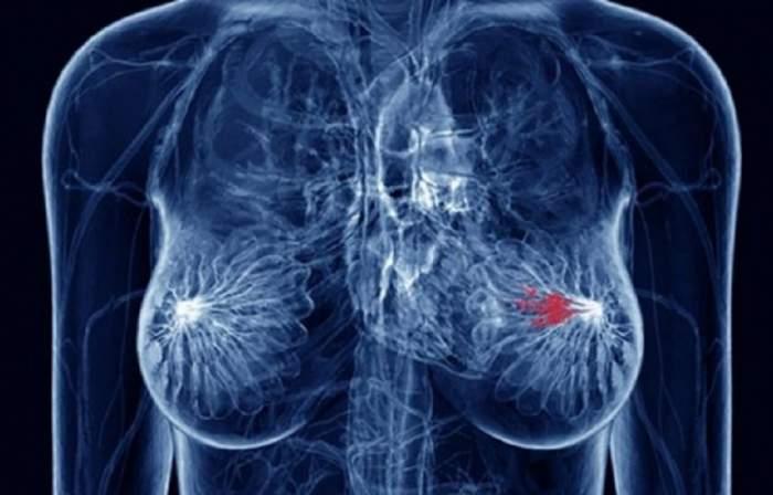 De-acum poţi verifica acasă dacă ai cancer mamar!