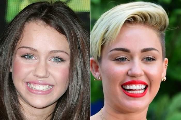 """GALERIE FOTO Vedetele de la Hollywood au fost prinse """"cu mâţa în sac"""". Uite cum arăta dantura lor înainte de a ajunge pe mâna dentiştilor"""