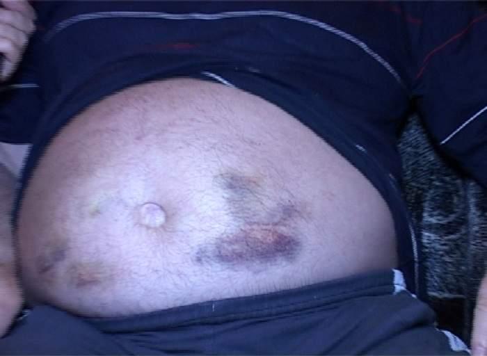 Imagini şocante! Tatăl unei vedete de la noi, aproape mutilat din cauza injecţiilor!