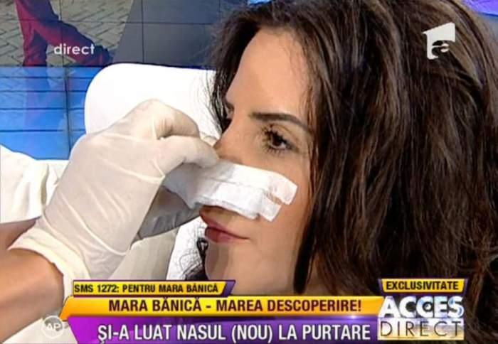"""Mara Bănică """"şi-a tras"""" nas nou-nouţ! Vezi ce reacţie a avut când şi-a dat badajul jos!"""