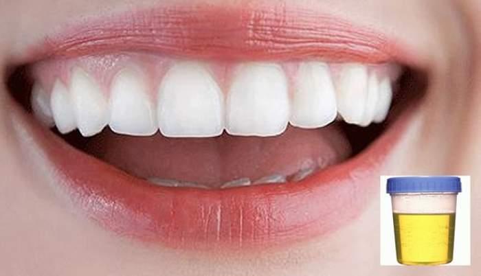 Cercetătorii pot să ne crească dinţii la loc folosind... urina!