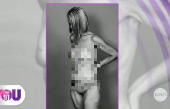 VIDEO/ Cum arată sânii după o operaţie de dublă masectomie! Beth Whaanga a învins cancerul şi dezvăluie adevărul de sub haine