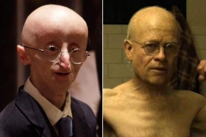 A inspirat personajul Benjamin Button, interpretat de Brad Pitt. Copilul care suferea de bătrâneţe a murit la vârsta de 13 ani