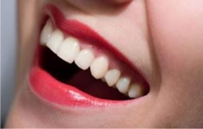 Vrei să ai dinţii albi? Uite cum poţi fără bani