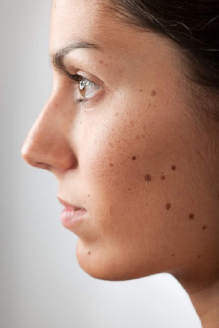 Aluniţele şi cancerul de piele! Care sunt semnele pe care NU TREBUIE să le ignori!
