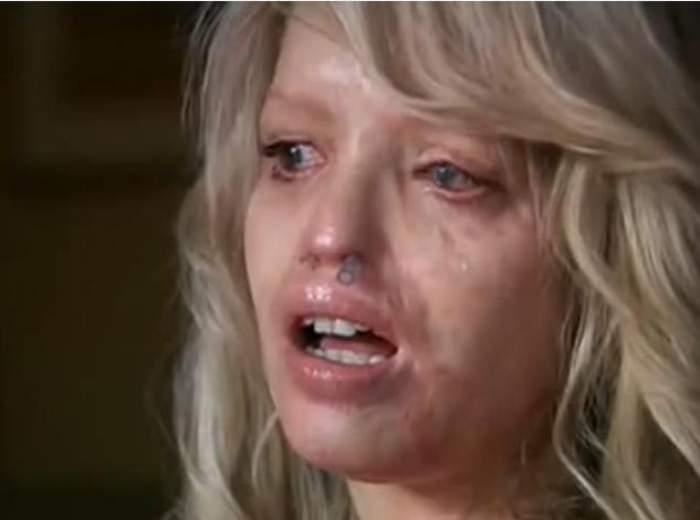 VIDEO / Şi-a refăcut faţa aproape complet după ce a fost atacată cu acid! Transformarea este incredibilă