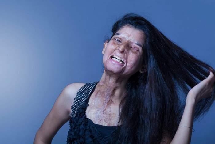 Cum a devenit fotografa Rahul Saharan, o inspiraţie pentru toate victimele acidului sulfuric! Atenţie, imagini şocante!