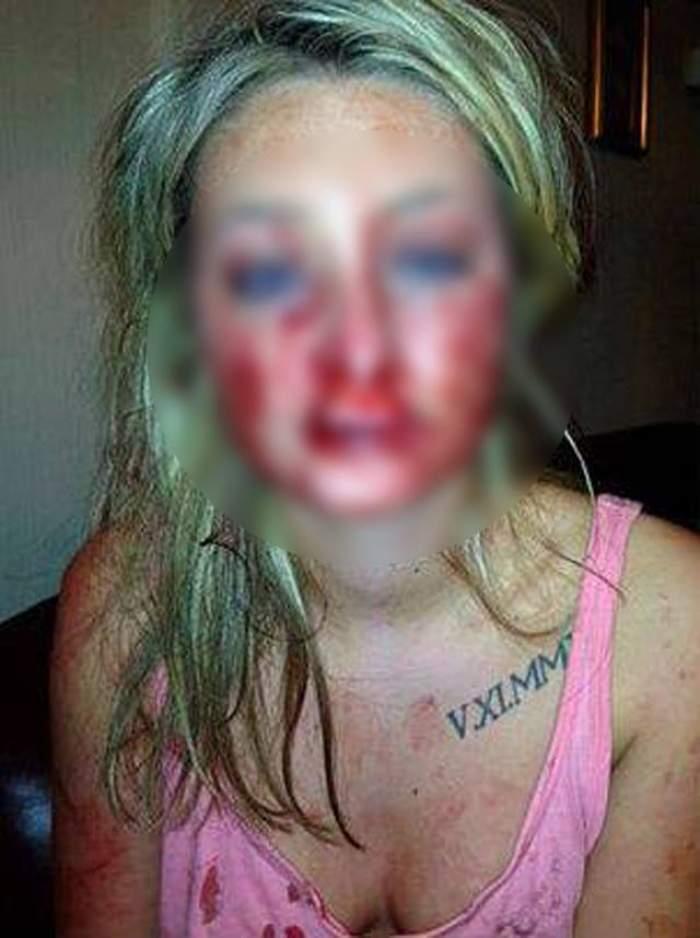 18+ O frumoasă BLONDĂ a fost NENOROCITĂ de iubitul ei! A muşcat-o de faţă până a desfigurat-o