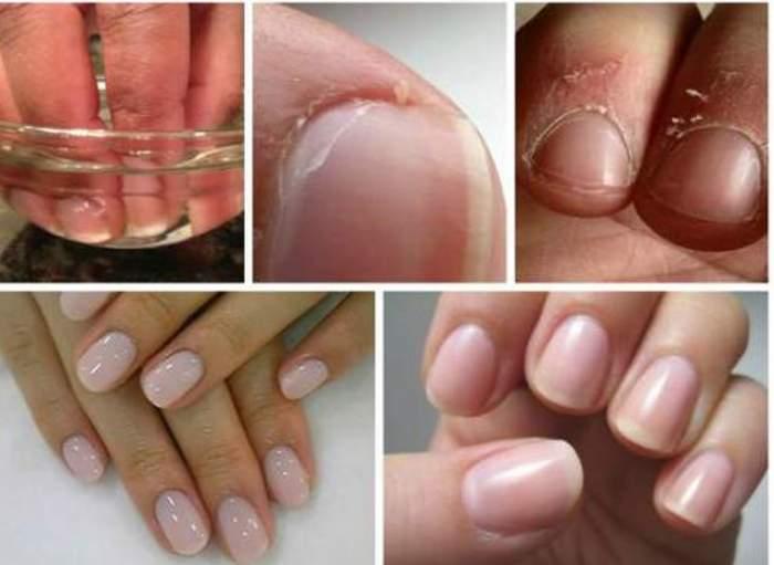 Tratamentul care te scapă de cuticule pentru totdeauna. Masează-ţi unghiile cu acest amestec! Efectul e uimitor
