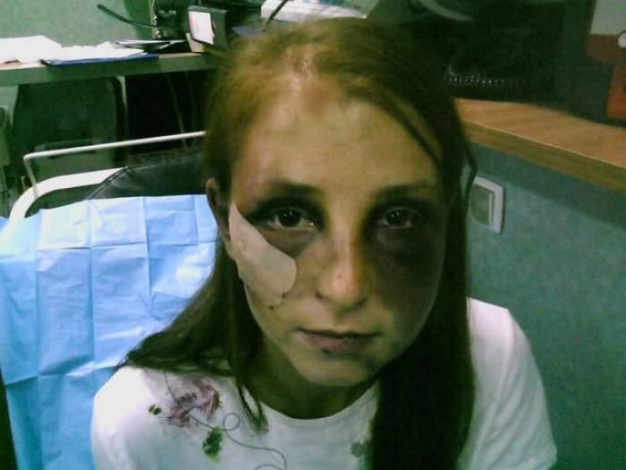 VIDEO / Coşmarul nu se mai termină! CE S-A ÎNTÂMPLAT cu fata bătută 22 de ore de iubitul ei!