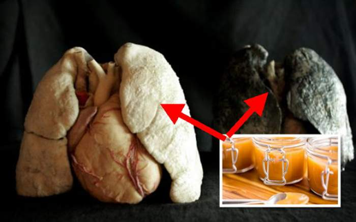 Scapi de fumat instant! Reţeta naturală care te face să uiţi de viciu şi te ajută să-ţi curăţi plămânii