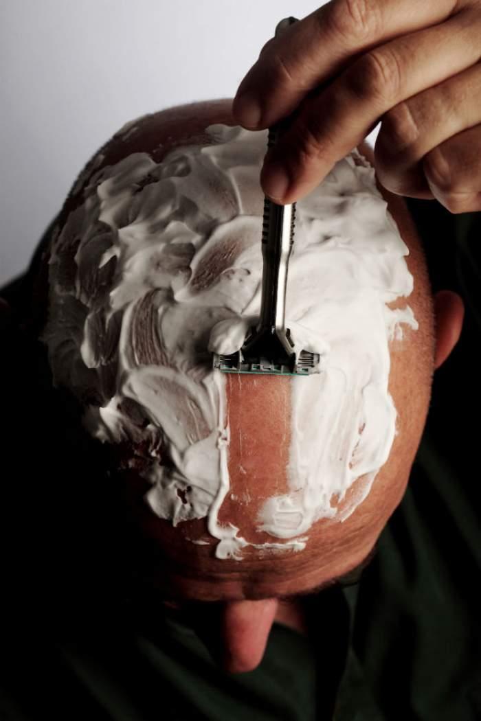 CHELIA va fi istorie! S-a inventat un tratament REVOLUŢIONAR care stimulează creşterea părului în doar 10 ZILE