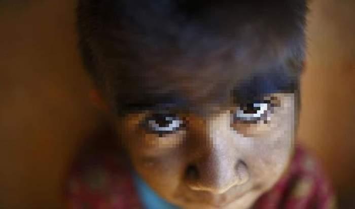 Poveste cutremurătoare! O fetiţă din Nepal suferă de o boală extrem de rară care o face să semene cu un vârcolac