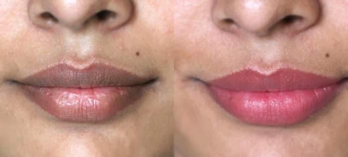 Ai buzele închise la culoare? Cum să le albeşti RAPID şi în mod NATURAL