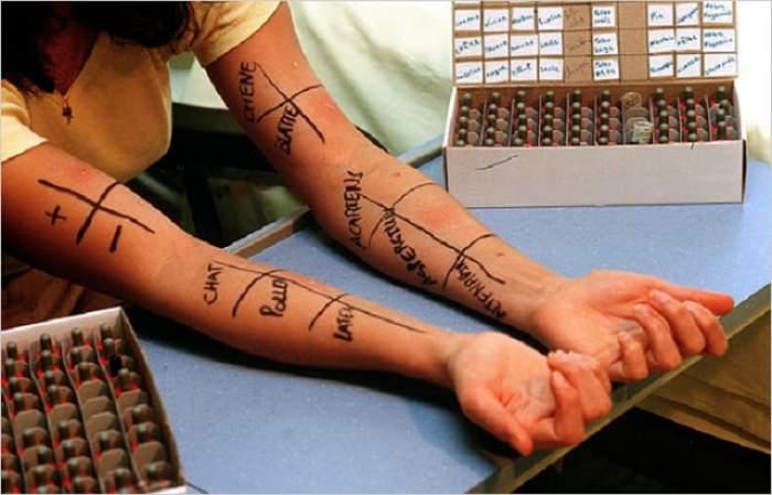 Testul alergologic făcut la medic îţi bagă mâna adânc în buzunar! Cum să-l faci acasă, fără niciun ban