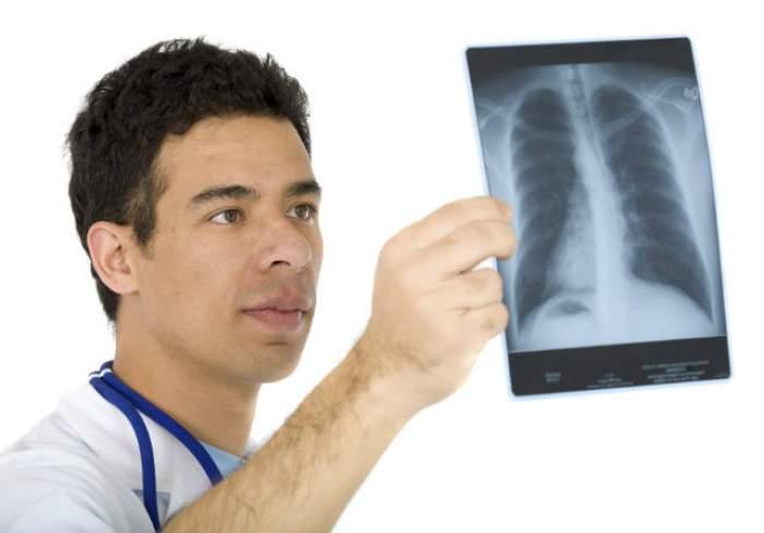 Eşti FUMĂTOR? Află un remediu natural care îţi curăţă plămânii de nicotină