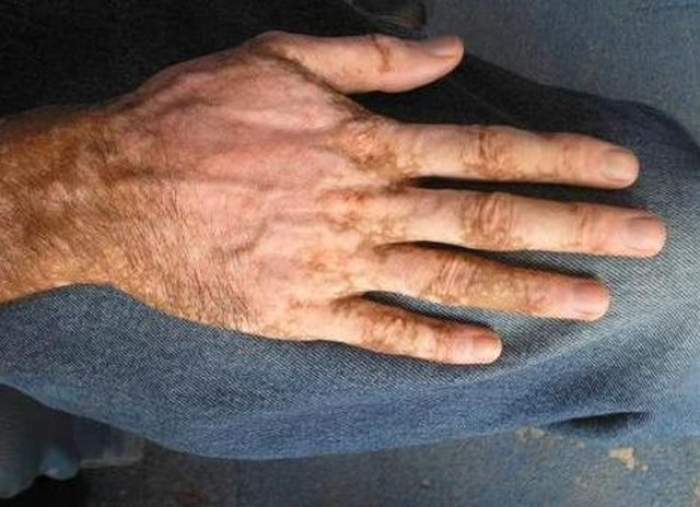 Ai probleme cu depigmentarea pielii? Tratament NATURIST pentru a scăpa de VITILIGO