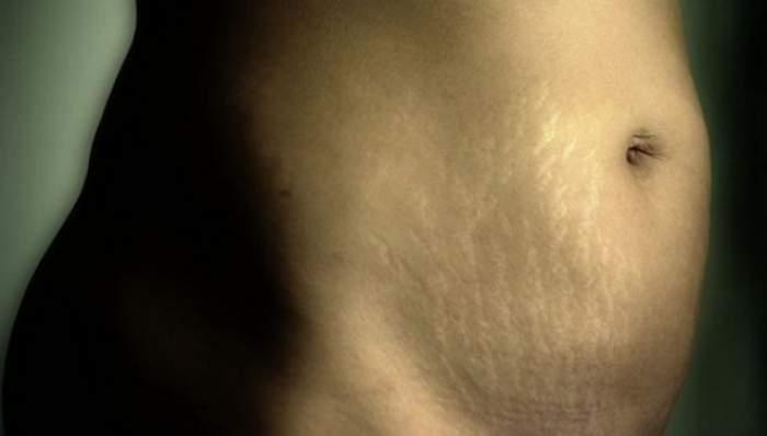 Cum scapi de vergeturile rămase după naştere? Iată un tratament rapid, ieftin şi naturist
