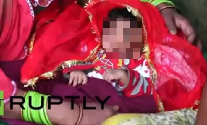 """VIDEO / Medicii şi familia sunt în şoc! Cum arată copilul cu """"trompă de elefant"""""""