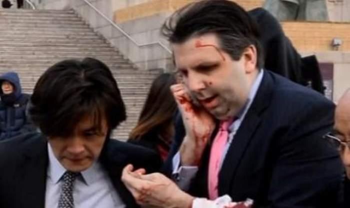 VIDEO / Un ambasador american a fost atacat de un bărbat cu o lamă de ras