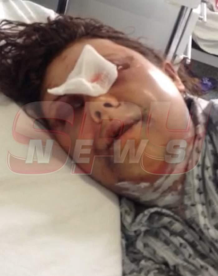 VIDEO / Motivele incredibile pentru care o femeie din Dâmboviţa a fost călcată în picioare de iubitul ei! A bătut-o până a băgat-o în spital!