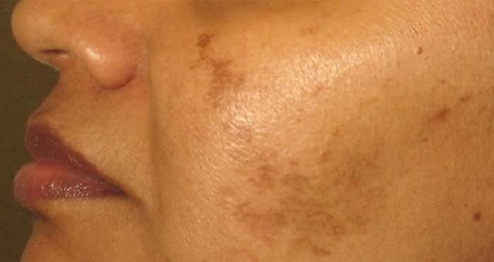 Tratamentul naturist care te scapă de petele maronii de pe faţă