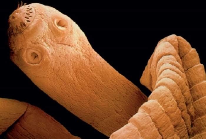 """Imaginea groazei! Bătrân mâncat de viermi: """"Ochii lui erau deschişi, dar nu putea să vorbească"""""""