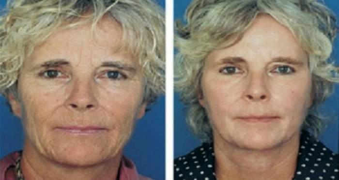 Are 70 de ani, dar tenul ei arată ca la 40! Remediul natural pe care l-a folosit o femeie pentru a scăpa complet de riduri