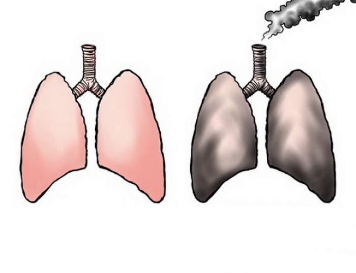 Dacă fumezi de peste 5 ani încearcă această reţetă pentru curăţarea plămânilor! Rezultate spectaculoase în doar 30 de zile