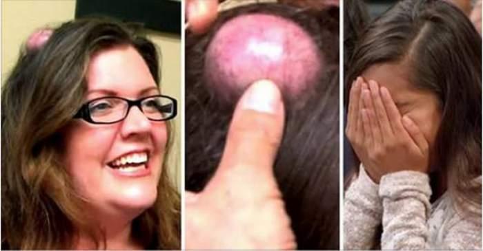 VIDEO / Imagini absolut dezgustătoare! A ajuns în faţa medicilor cu un chist în cap. Ce a urmat a oripilat lumea întreagă