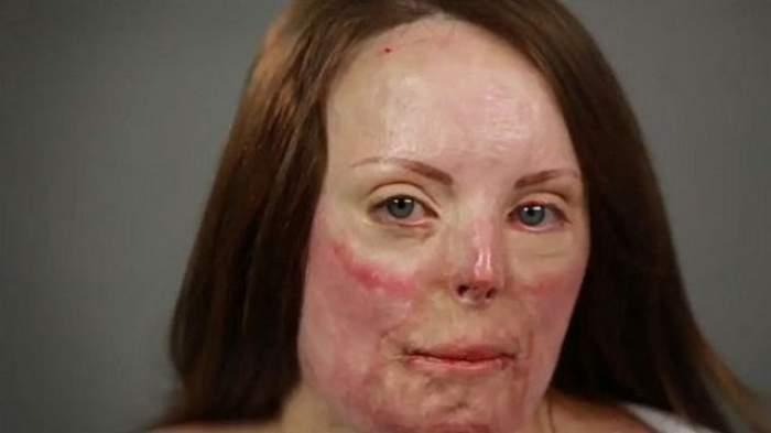 VIDEO / Transformare radicală! Cum arată o femeie cu arsuri pe 60% din suprafaţa pielii, după ce este machiată de un make-up artist
