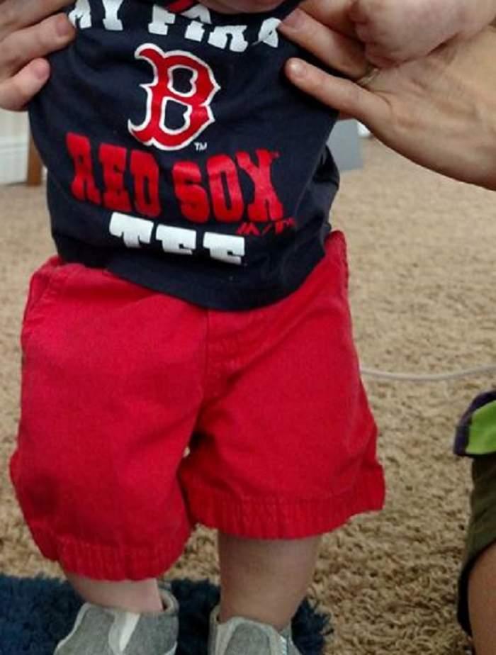 FOTO / Copilul fără cap şi-a sărbătorit prima zi de naştere! Cum arată micuţul care a uimit o lume întreagă