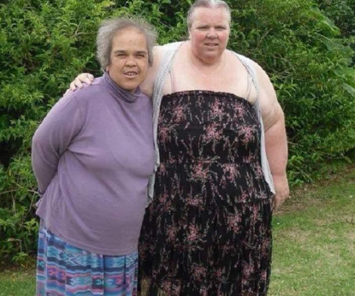 VIDEO / Ambiţie de fier, rezultate HORROR! Cum a ajuns să arate o femeie de 53 de ani, după ce a slăbit 112 kg. Atenţie! Imagini şocante!