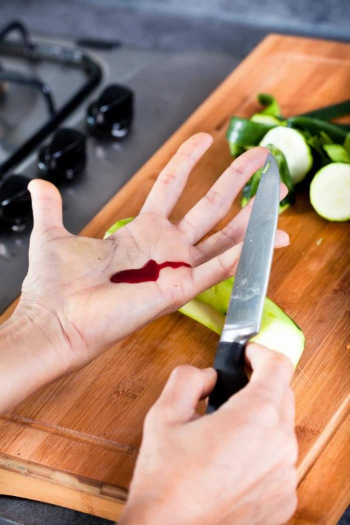 Cum să opreşti o sângerare în doar 10 secunde?