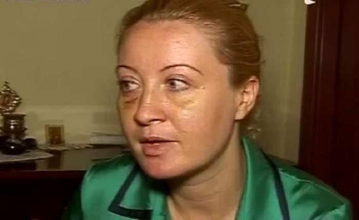 """VIDEO / A fost bătută până a leşinat! O tânără din Timişoara îşi caută agresorul: """"Mă ținea de gură și îmi spunea că mă desfigurează!"""""""