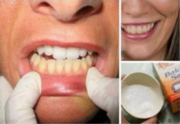 Cele mai puternice remedii făcute în casă, pentru dinţi galbeni, care fac minuni în câteva zile!