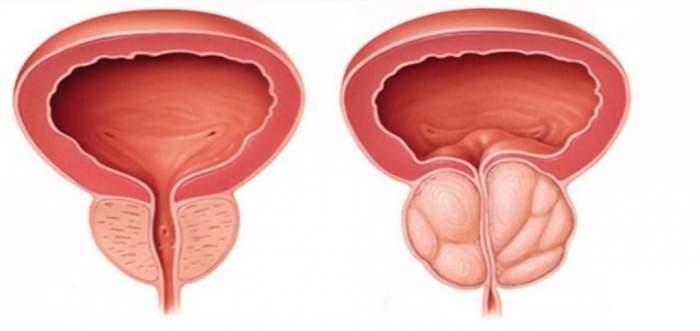 Turcii nu suferă de afecţiuni ale prostatei! Secretul constă într-o reţetă naturală alcătuită din 4 ingrediente simple