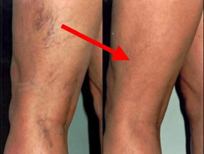 Ce cauzează varicele în picioarele mele
