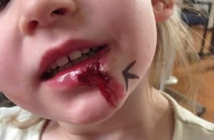VIDEO / Ea e fetiţa bionică! Are 7 ani, nu mănâncă, nu doarme şi nu simte durerea -  nici atunci când e lovită de maşină