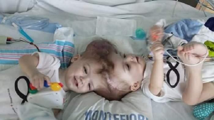 FOTO / Emoţionant! După ce s-au născut cu capetele lipite, doi frăţiori s-au privit pentru prima oară în ochi