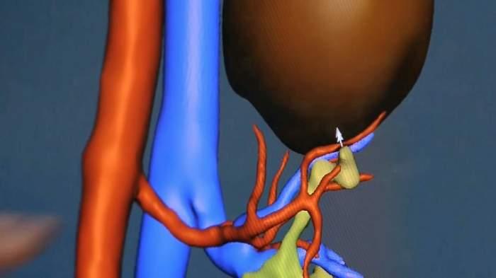 ÎNTREBAREA ZILEI – LUNI: Cum poţi scăpa foarte repede de pietrele de la rinichi?