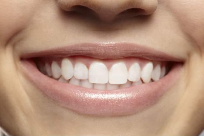 VIDEO / Ia-ţi adio de la respiraţia urât mirositoare, tartru şi albeşte-ţi dinţii cu ajutorul unui singur ingredient!