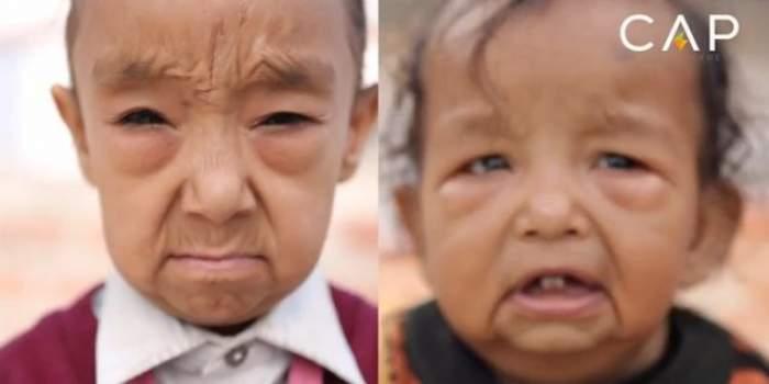 VIDEO / Are doar şapte ani, dar arată de 80! Imagini cutremurătoare cu boala care transformă copiii în bătrâni
