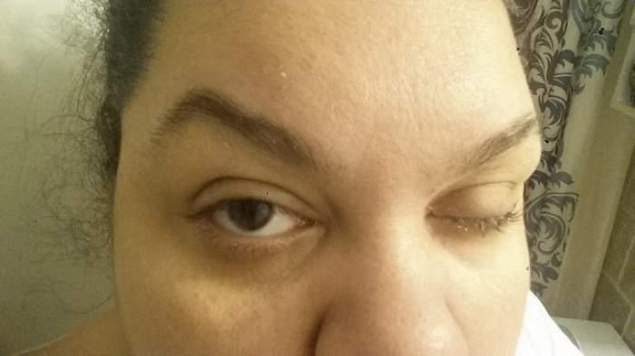 FOTO / O femeie a trebuit să-şi scoată ochiul din cauza machiajului! Imagini de necrezut