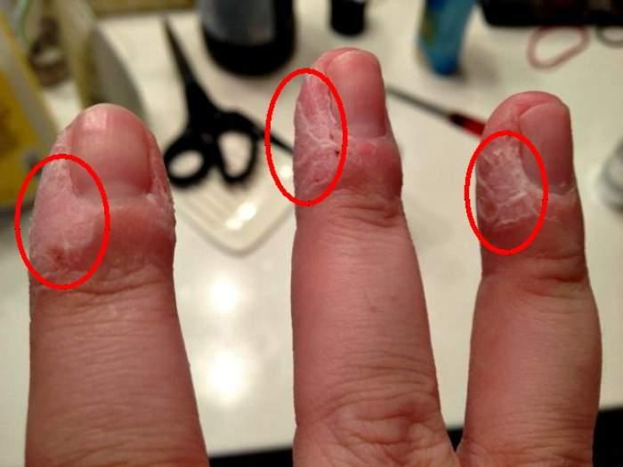 Îţi rozi pieliţele de la unghii!? Habar n-ai cât de periculos este acest obicei! Cum poţi să tratezi această dependenţă