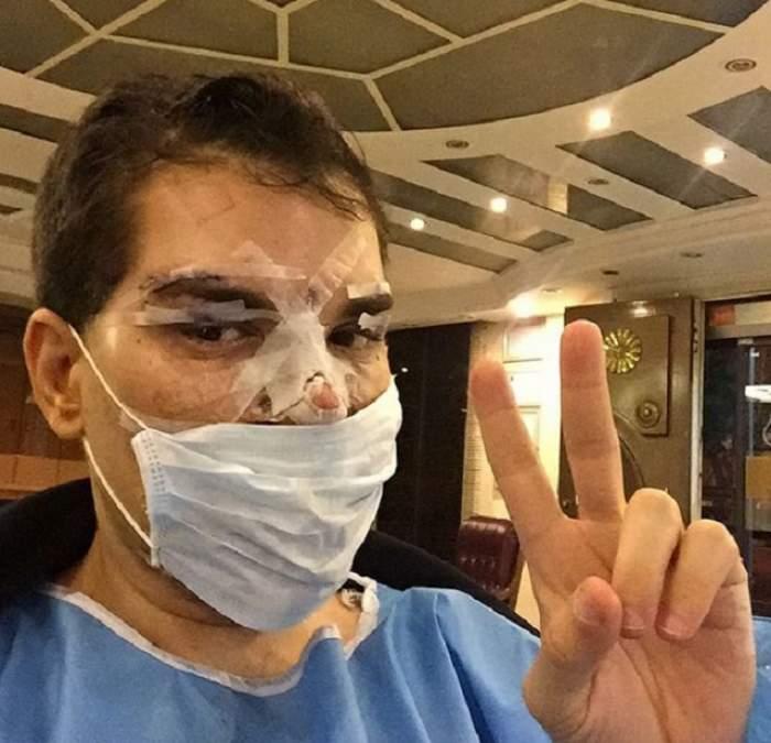 """VIDEO / A cheltuit 384.000 de euro ca să se transforme în Ken, dar una dintre operaţii l-a băgat în spital! Rodrigo Alves: """"Infecţia poate să-mi cuprindă toată faţa"""""""