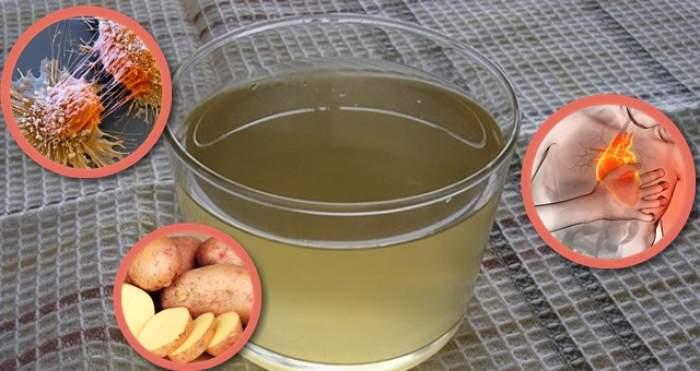 Sucul de cartofi, cel mai bun remediu pentru sănătate. Beneficiile incredibile!