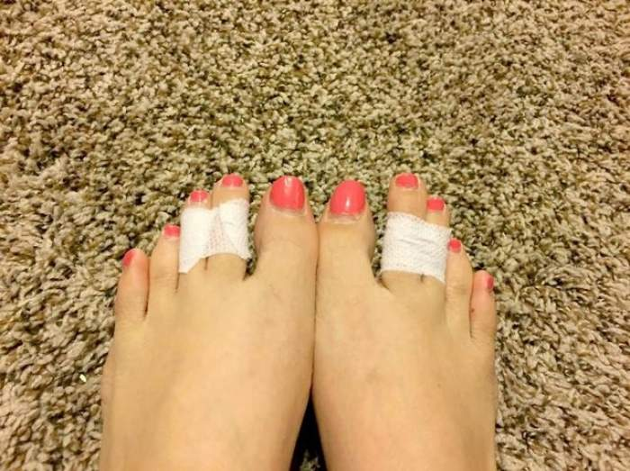 Motivul pentru care multe femei îşi leagă degetele de la picioare cu bandă adezivă! E secretul de care ai nevoie pe tocuri