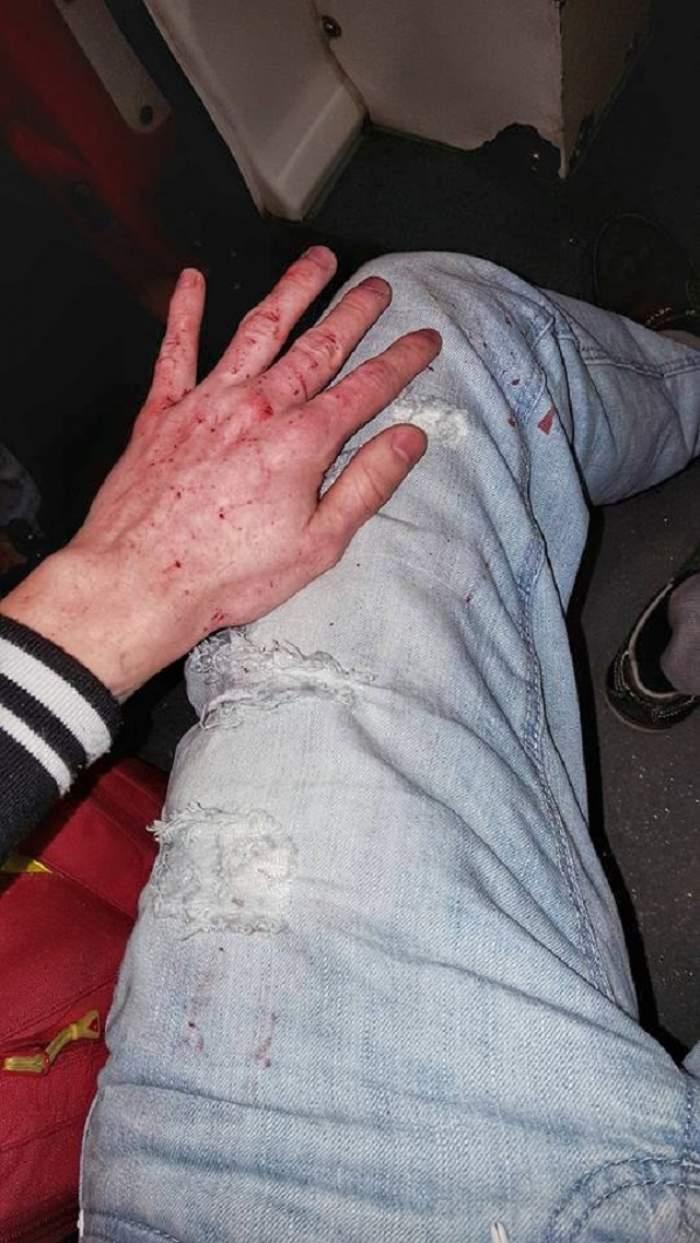 FOTO / A fost la un pas de moarte, din cauza unui şofer băut! Imagini terifiante de la locul accidentului